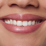 Photo of woman's smiling mouth